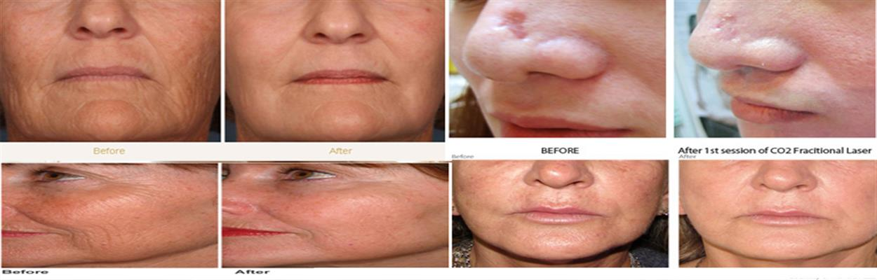 Co2 Laser Surgery Nepal Skin Care Centre